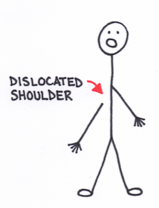 Me Vs. My Body: Infinite Shoulder Dislocations